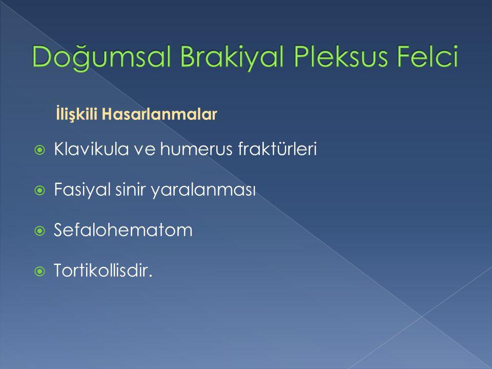 Doğumsal Brakiyal Pleksus Felci