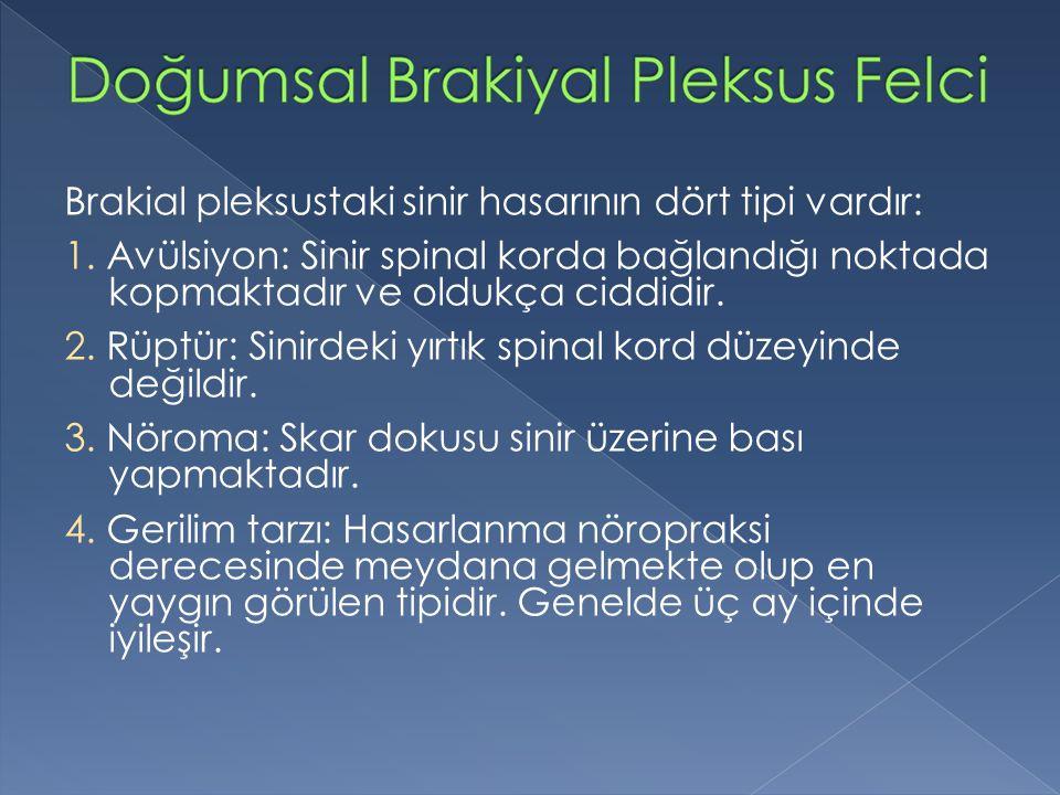 Brakial pleksustaki sinir hasarının dört tipi vardır: