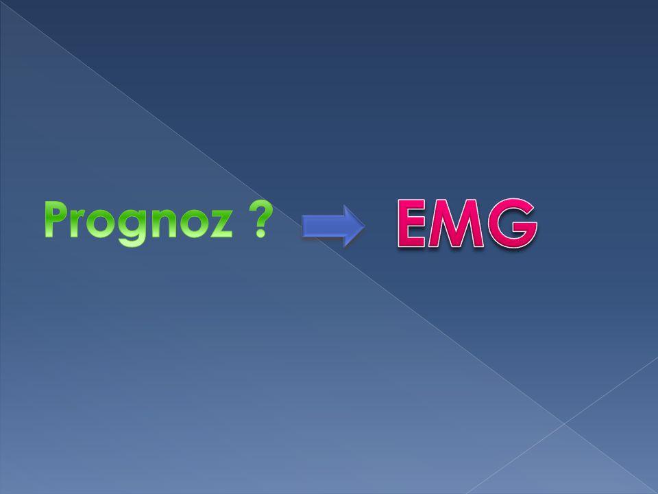 EMG Prognoz