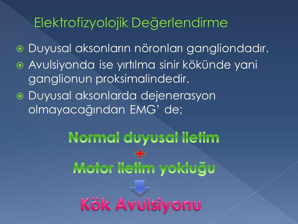 + Kök Avulsiyonu Normal duyusal iletim Motor iletim yokluğu
