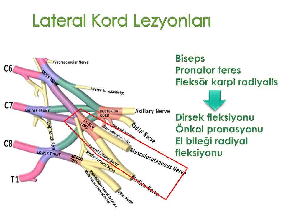 Lateral Kord Lezyonları