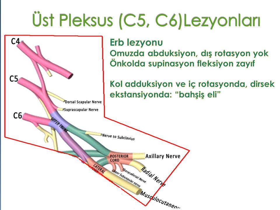 Üst Pleksus (C5, C6)Lezyonları