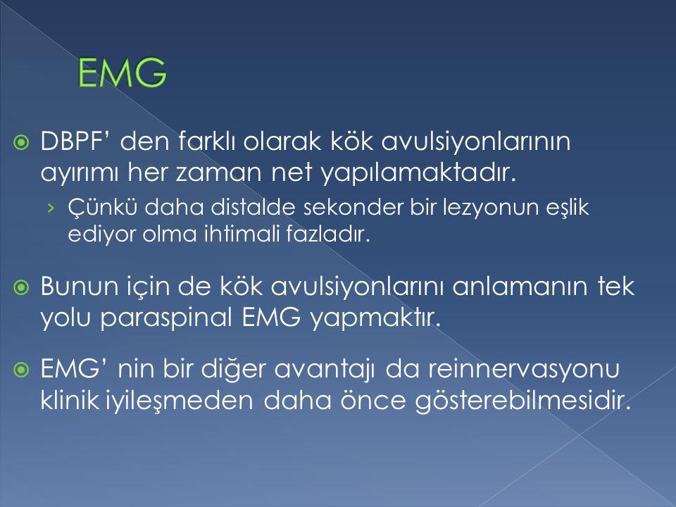 EMG DBPF' den farklı olarak kök avulsiyonlarının ayırımı her zaman net yapılamaktadır.