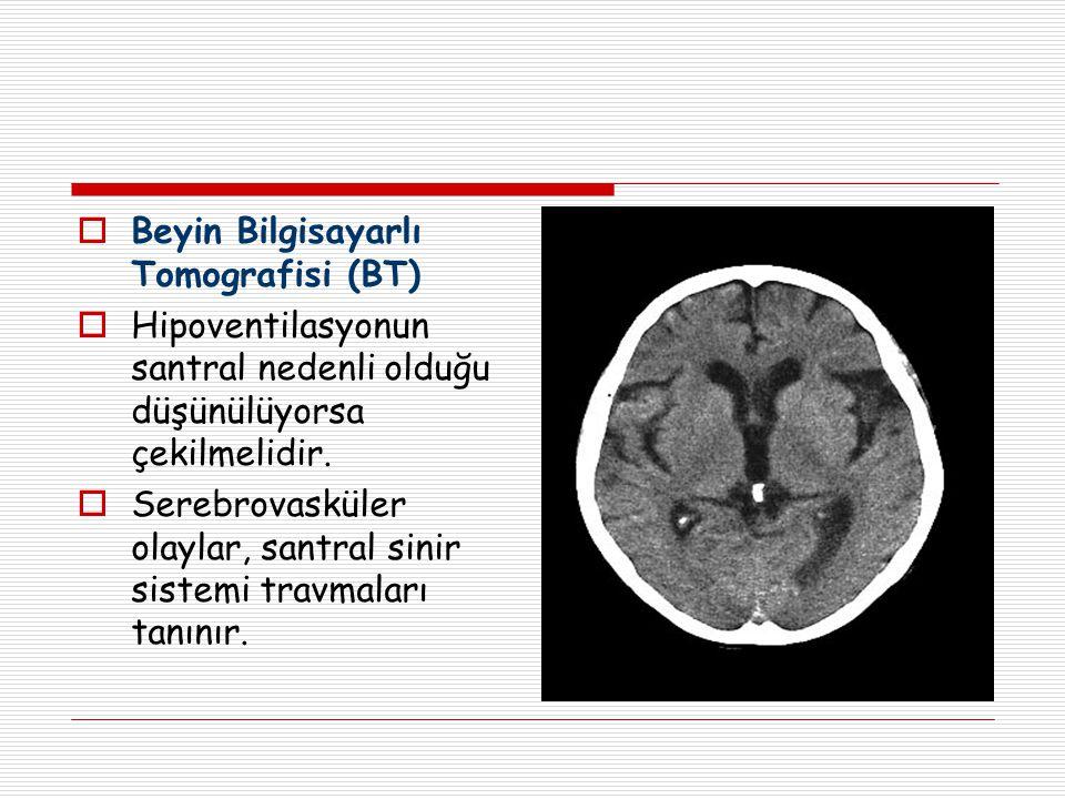Beyin Bilgisayarlı Tomografisi (BT)