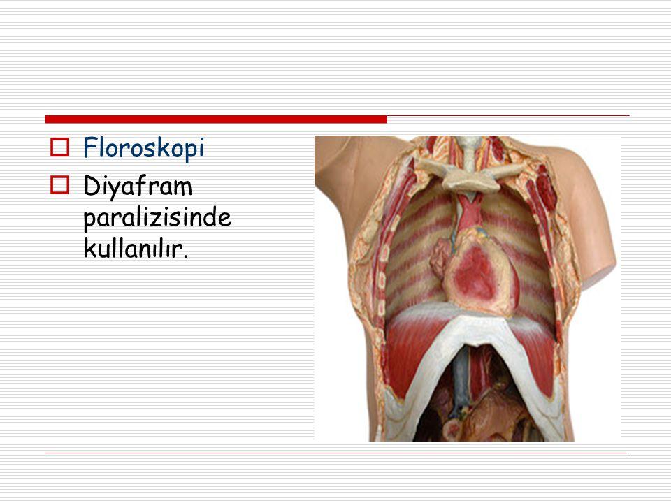 Floroskopi Diyafram paralizisinde kullanılır.