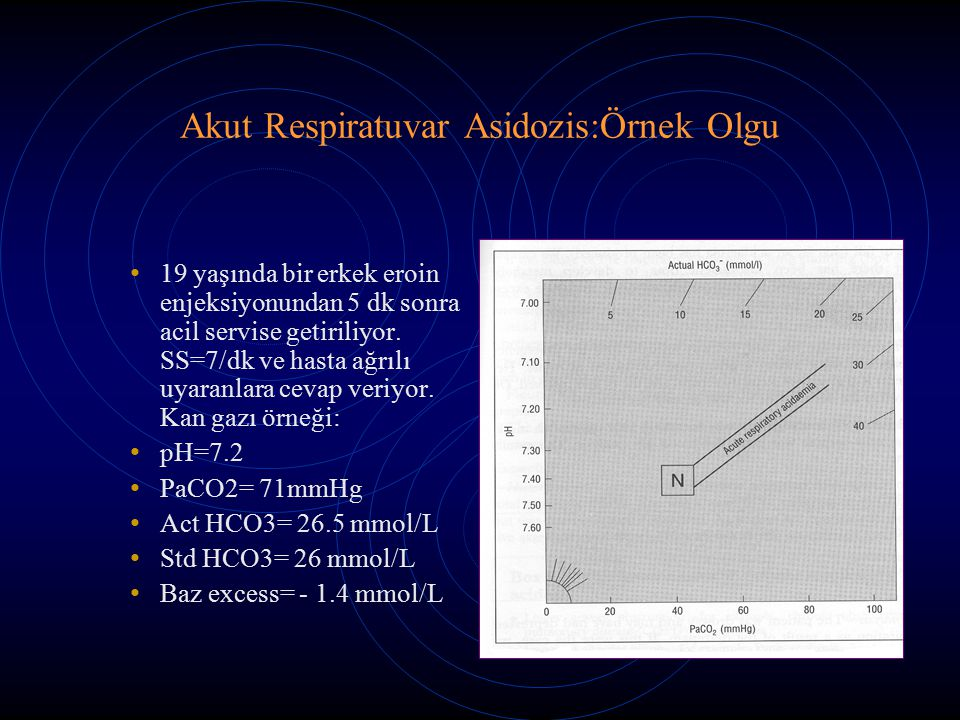 Akut Respiratuvar Asidozis:Örnek Olgu