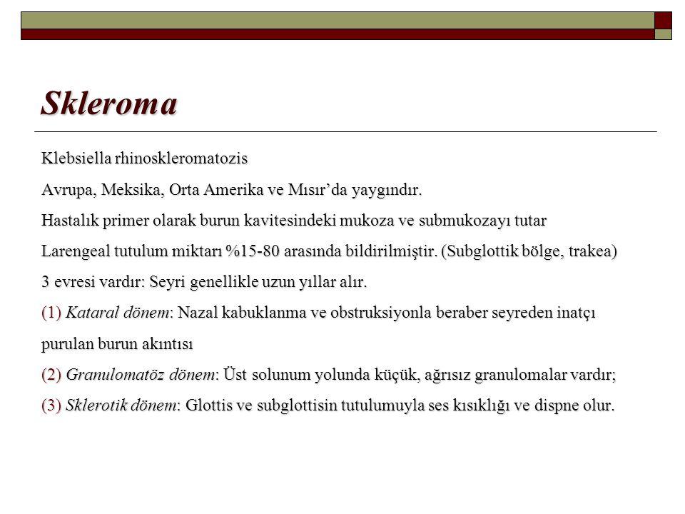 Skleroma Klebsiella rhinoskleromatozis