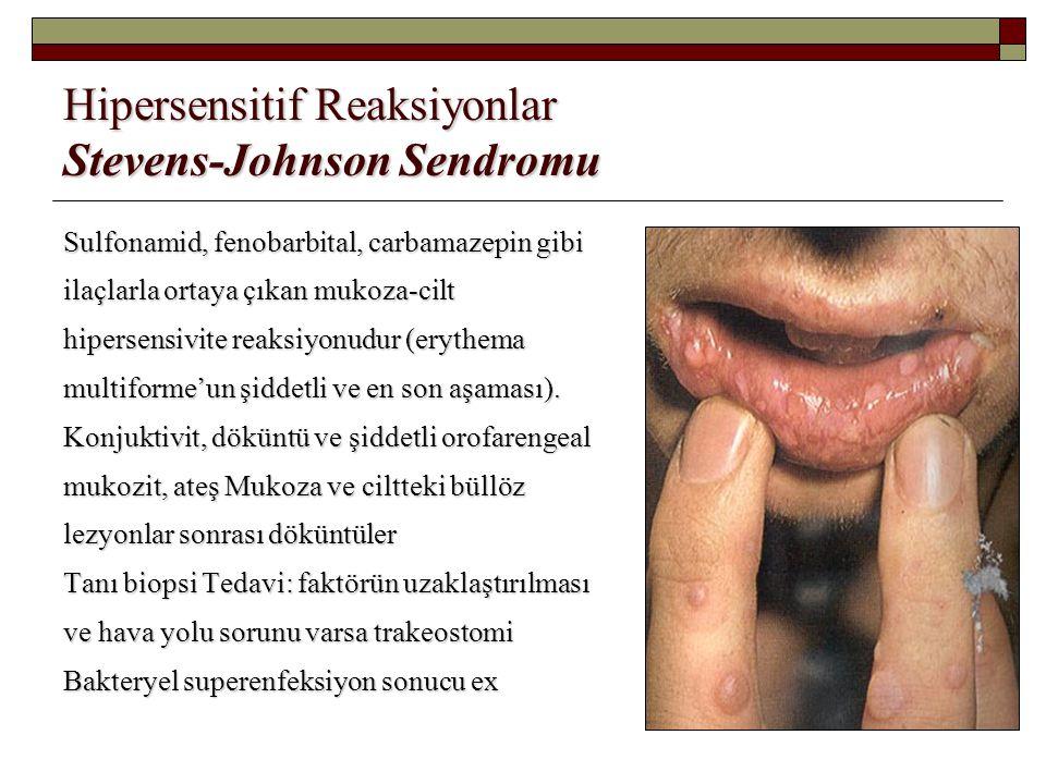 Hipersensitif Reaksiyonlar Stevens-Johnson Sendromu