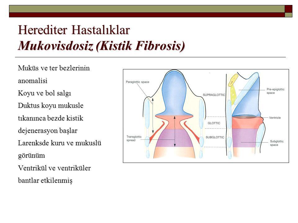 Herediter Hastalıklar Mukovisdosiz (Kistik Fibrosis)