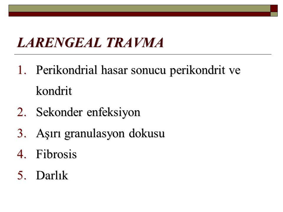 LARENGEAL TRAVMA Perikondrial hasar sonucu perikondrit ve kondrit