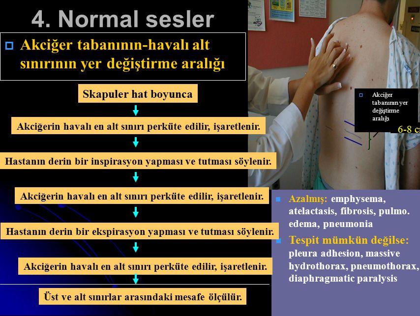 4. Normal sesler Akciğer tabanının yer değiştirme aralığı. 6-8 cm. Skapuler hat boyunca.
