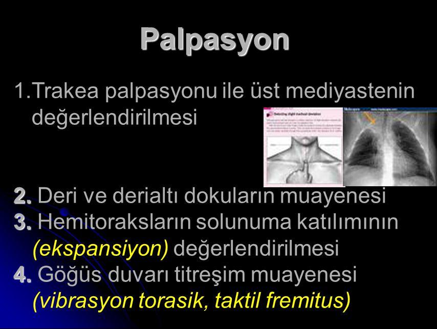 Palpasyon Trakea palpasyonu ile üst mediyastenin değerlendirilmesi