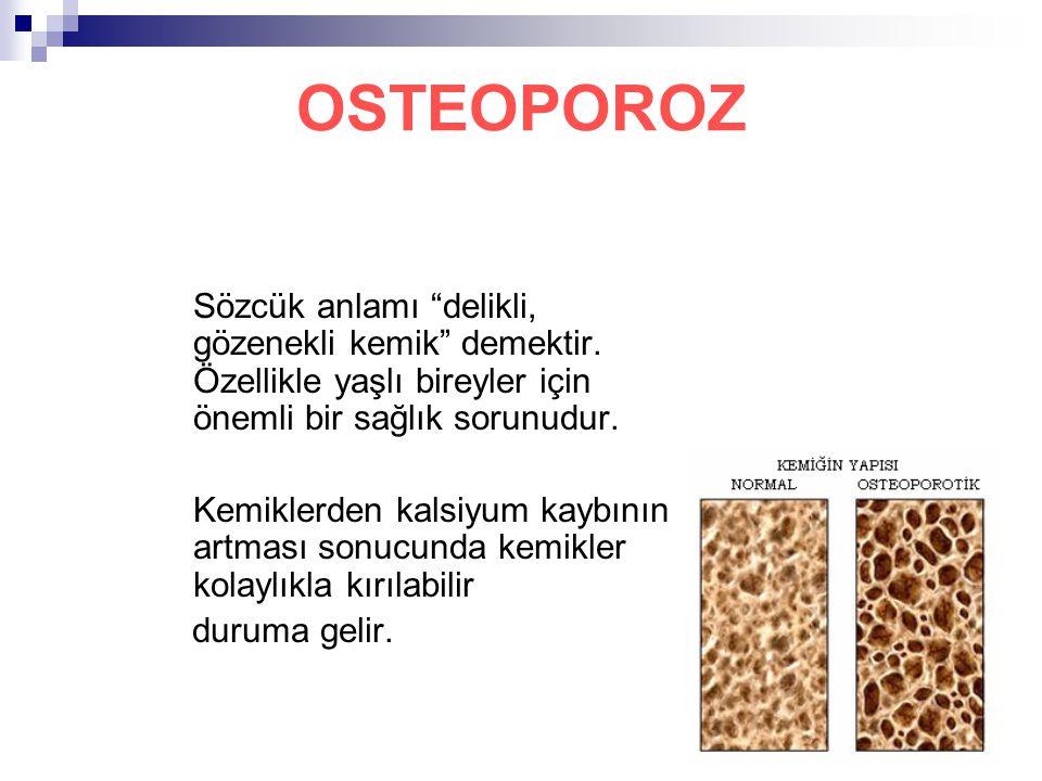 OSTEOPOROZ Sözcük anlamı delikli, gözenekli kemik demektir. Özellikle yaşlı bireyler için önemli bir sağlık sorunudur.