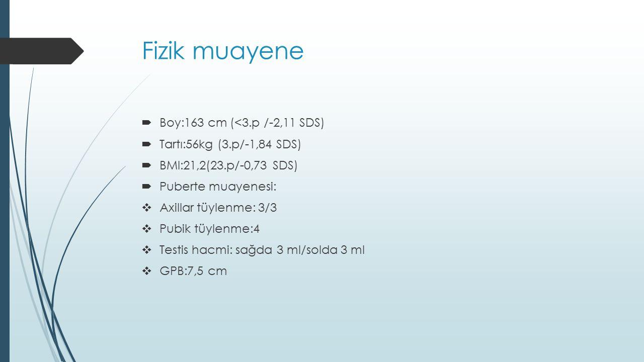 Fizik muayene Boy:163 cm (<3.p /-2,11 SDS)