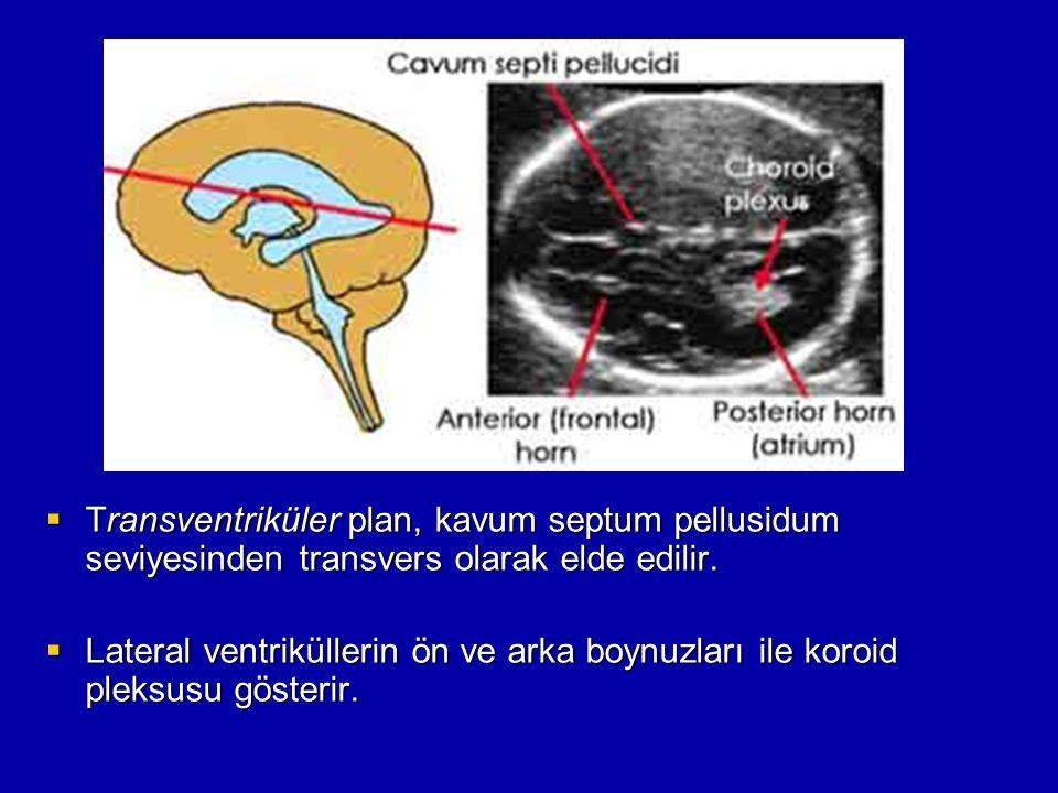 Transventriküler plan, kavum septum pellusidum seviyesinden transvers olarak elde edilir.