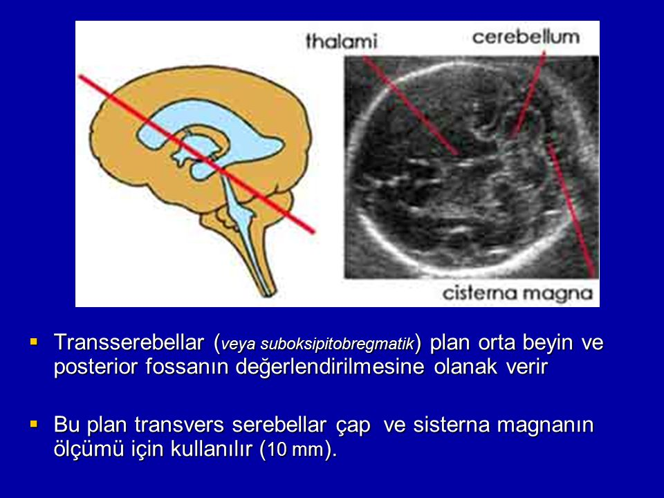 Transserebellar (veya suboksipitobregmatik) plan orta beyin ve posterior fossanın değerlendirilmesine olanak verir