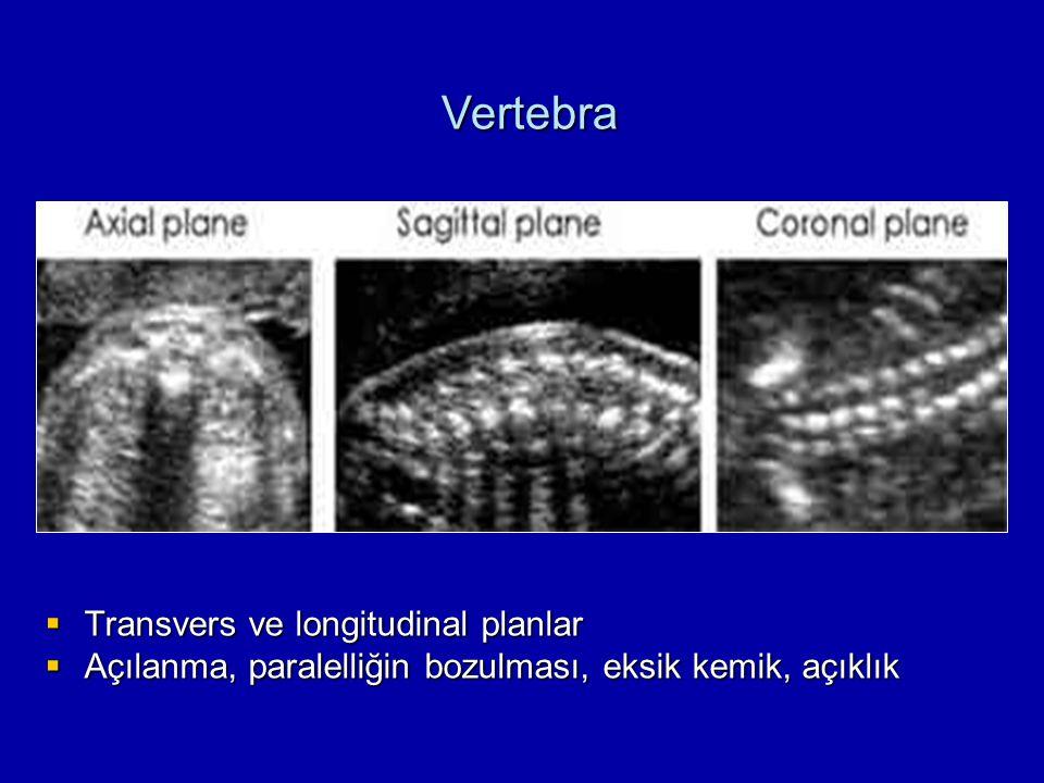 Vertebra Transvers ve longitudinal planlar