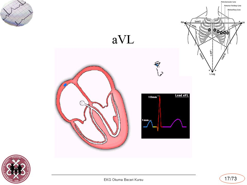 EKG Okuma Beceri Kursu