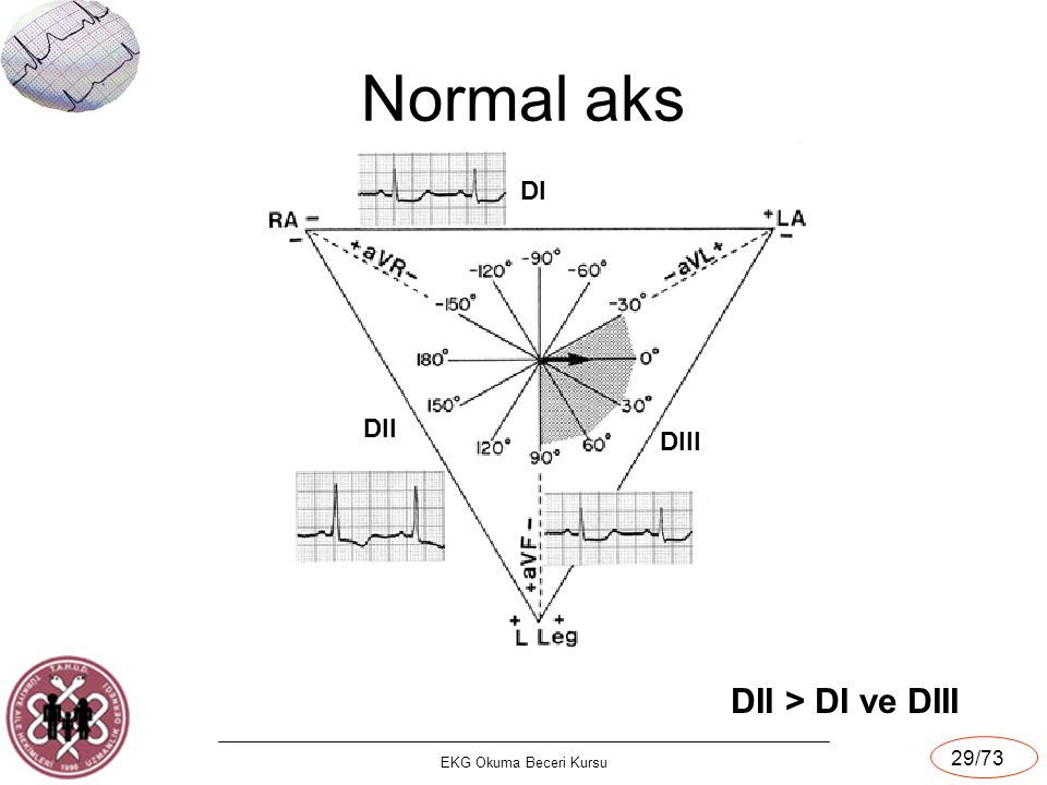 Normal aks DI DII DIII DII > DI ve DIII EKG Okuma Beceri Kursu