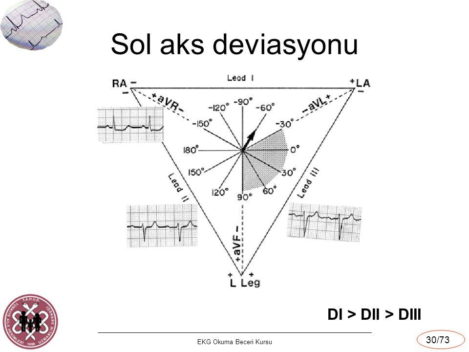 Sol aks deviasyonu DI > DII > DIII EKG Okuma Beceri Kursu
