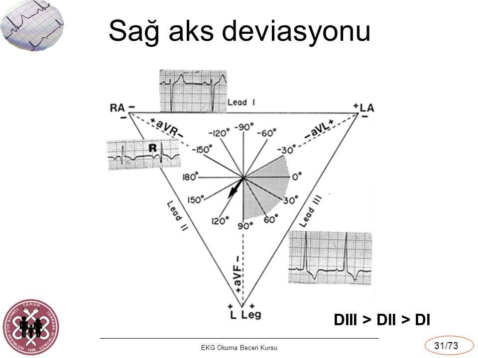 Sağ aks deviasyonu DIII > DII > DI EKG Okuma Beceri Kursu