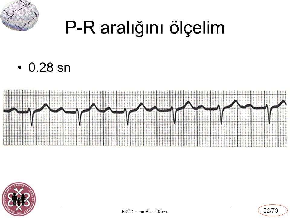 P-R aralığını ölçelim 0.28 sn EKG Okuma Beceri Kursu