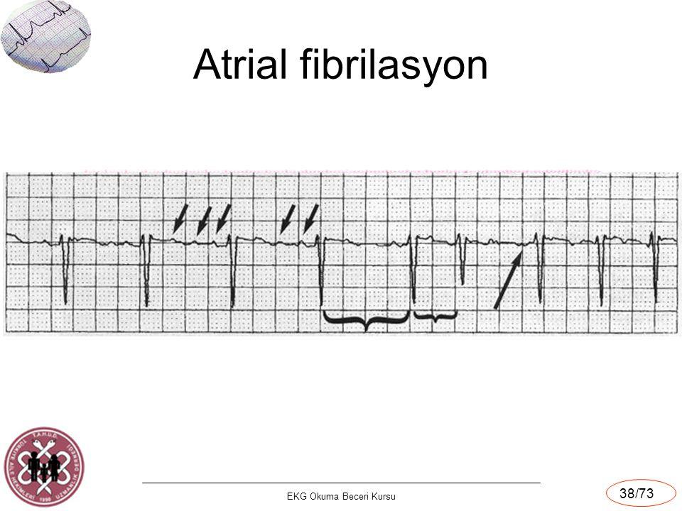 Atrial fibrilasyon EKG Okuma Beceri Kursu