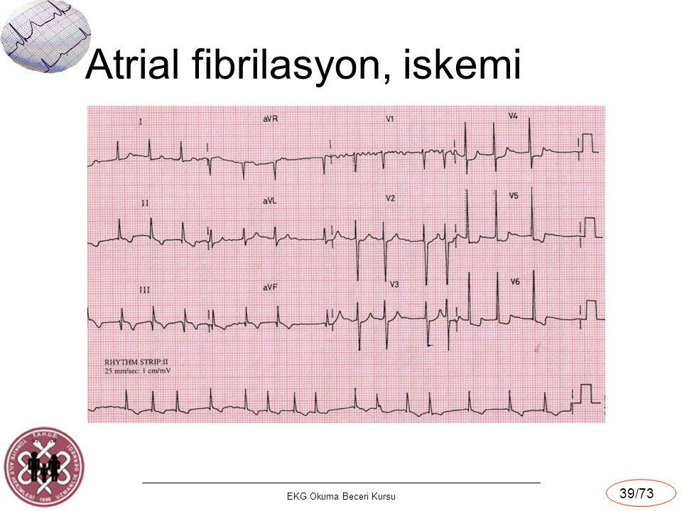 Atrial fibrilasyon, iskemi