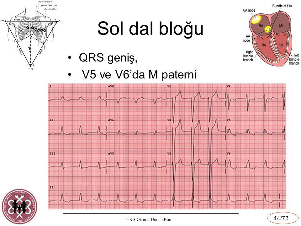 Sol dal bloğu QRS geniş, V5 ve V6'da M paterni EKG Okuma Beceri Kursu