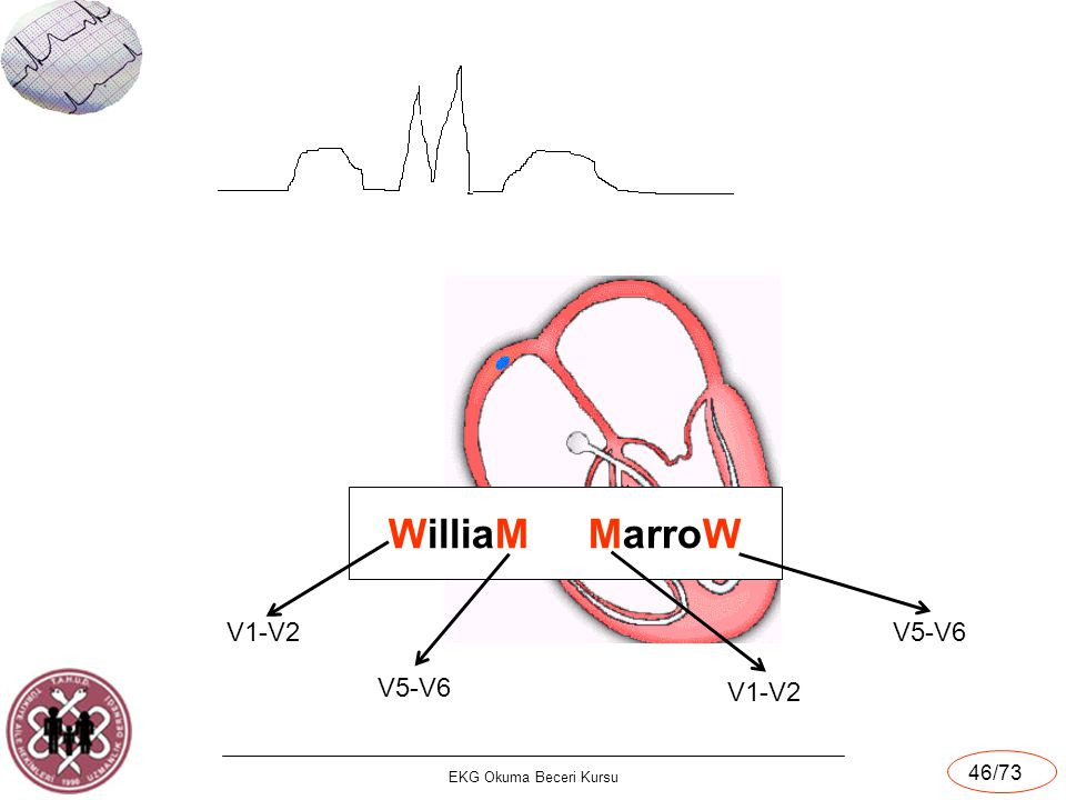 X WilliaM MarroW V1 V1-V2 V5-V6 V5-V6 V1-V2 EKG Okuma Beceri Kursu