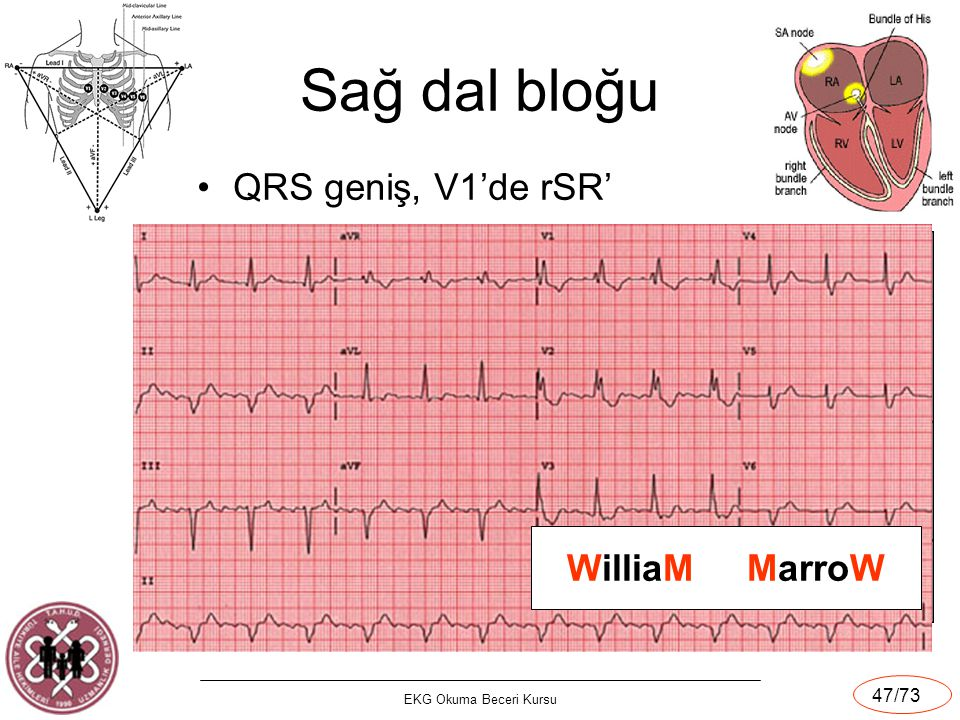 Sağ dal bloğu QRS geniş, V1'de rSR' WilliaM MarroW