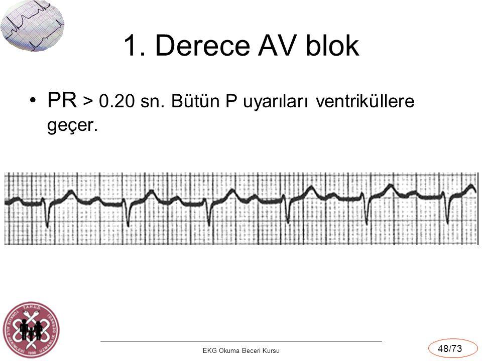 1. Derece AV blok PR > 0.20 sn. Bütün P uyarıları ventriküllere geçer. EKG Okuma Beceri Kursu