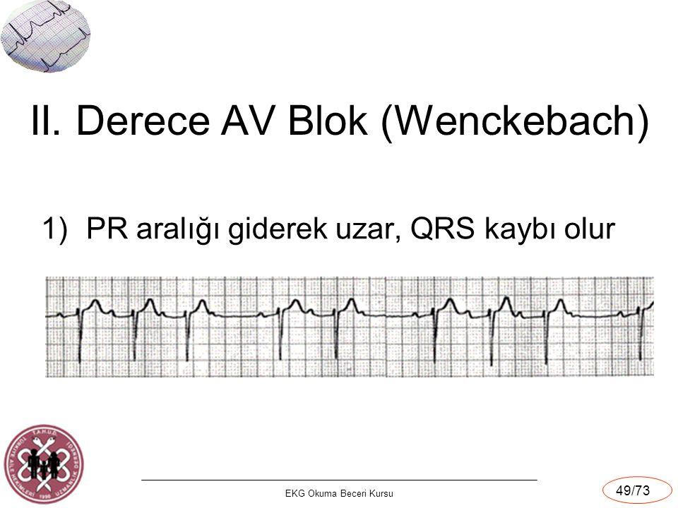 II. Derece AV Blok (Wenckebach)