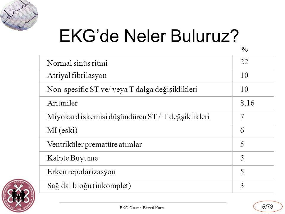 EKG'de Neler Buluruz Normal sinüs ritmi 22 Atriyal fibrilasyon 10