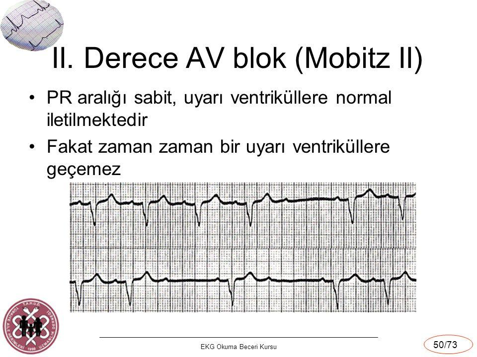 II. Derece AV blok (Mobitz II)