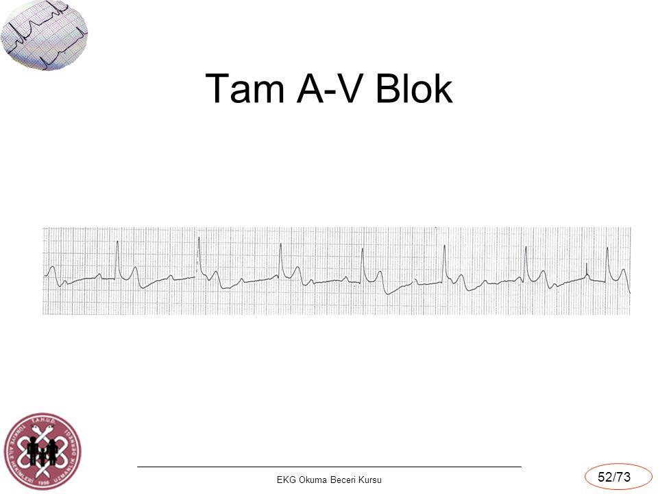 Tam A-V Blok EKG Okuma Beceri Kursu
