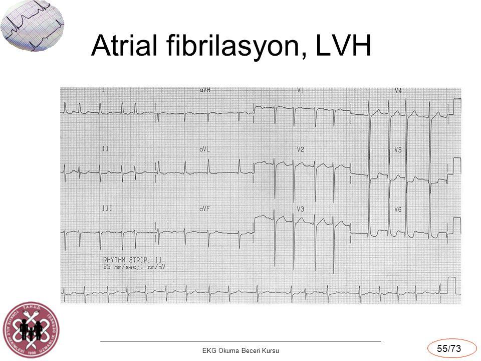 Atrial fibrilasyon, LVH