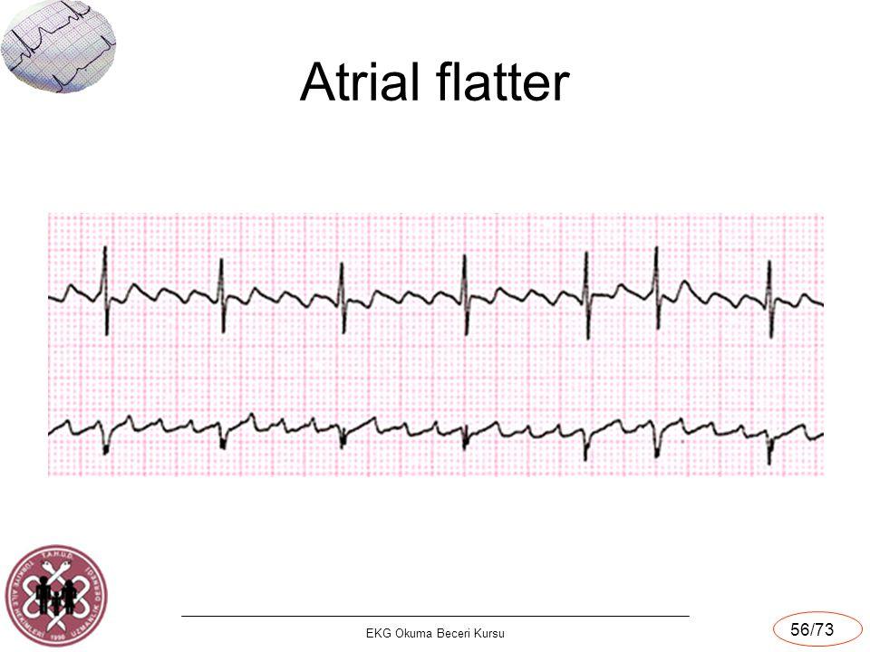 Atrial flatter EKG Okuma Beceri Kursu