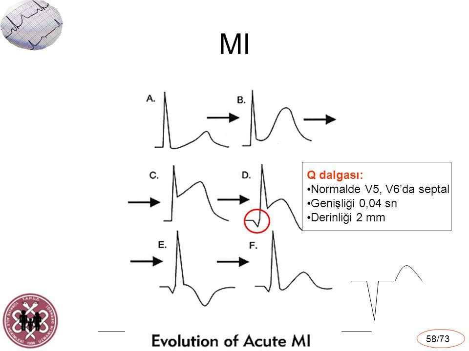 MI Q dalgası: Normalde V5, V6'da septal Genişliği 0,04 sn