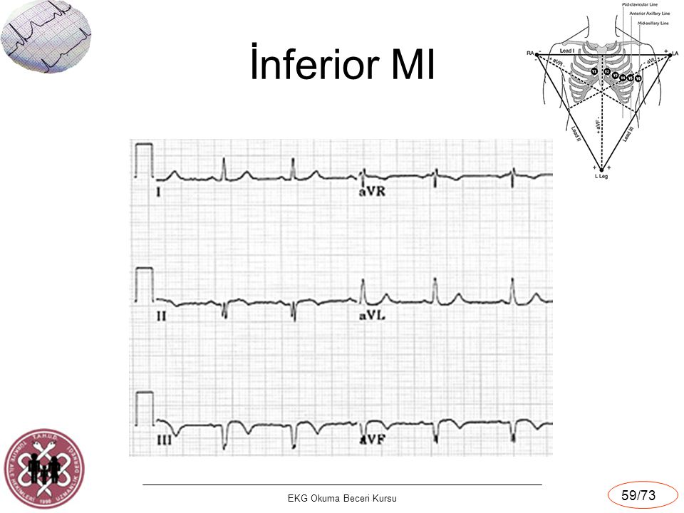 İnferior MI EKG Okuma Beceri Kursu