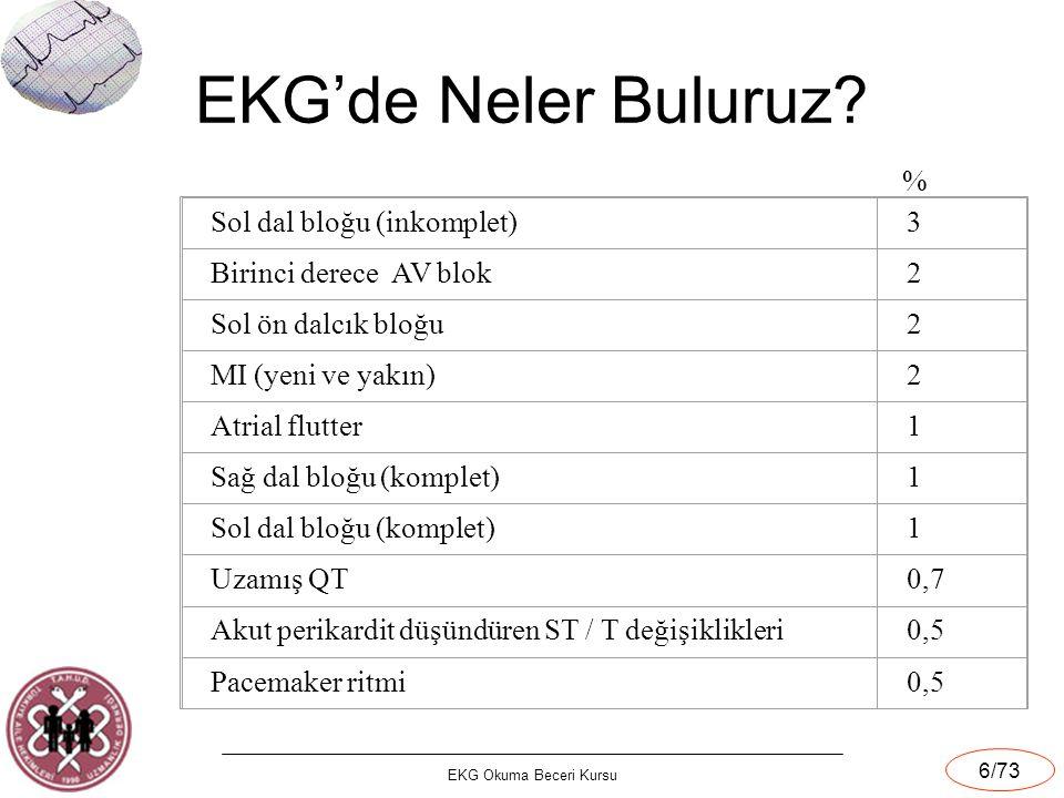 EKG'de Neler Buluruz % Sol dal bloğu (inkomplet) 3