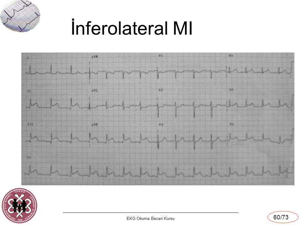 İnferolateral MI EKG Okuma Beceri Kursu