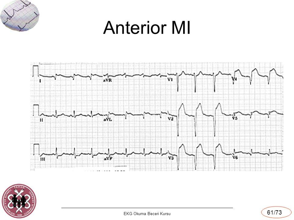 Anterior MI EKG Okuma Beceri Kursu