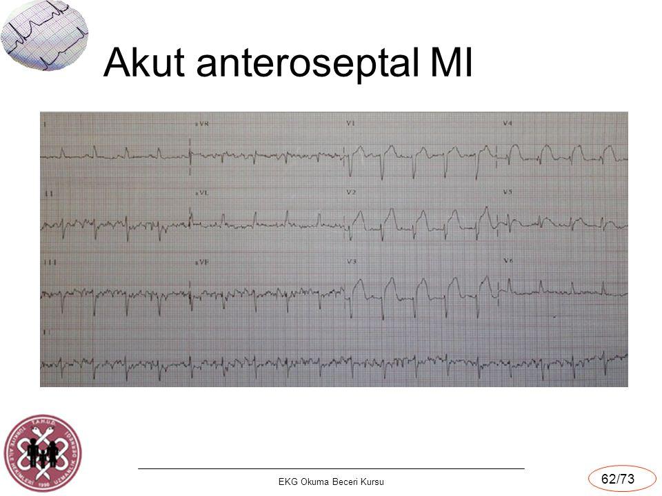 Akut anteroseptal MI EKG Okuma Beceri Kursu