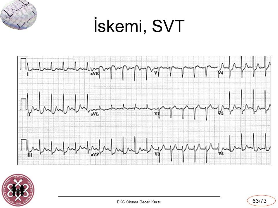 İskemi, SVT EKG Okuma Beceri Kursu