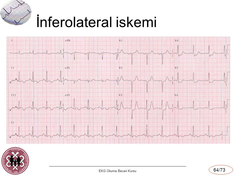 İnferolateral iskemi EKG Okuma Beceri Kursu