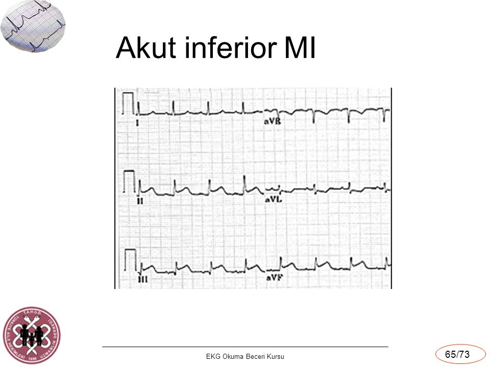 Akut inferior MI EKG Okuma Beceri Kursu