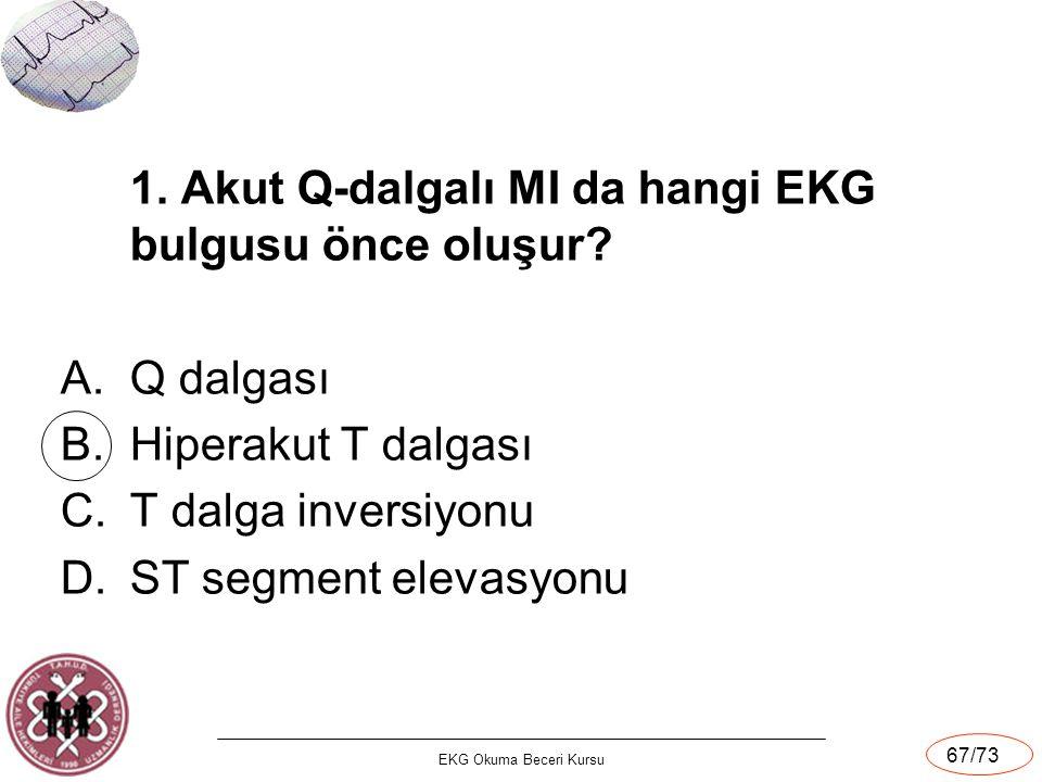 1. Akut Q-dalgalı MI da hangi EKG bulgusu önce oluşur