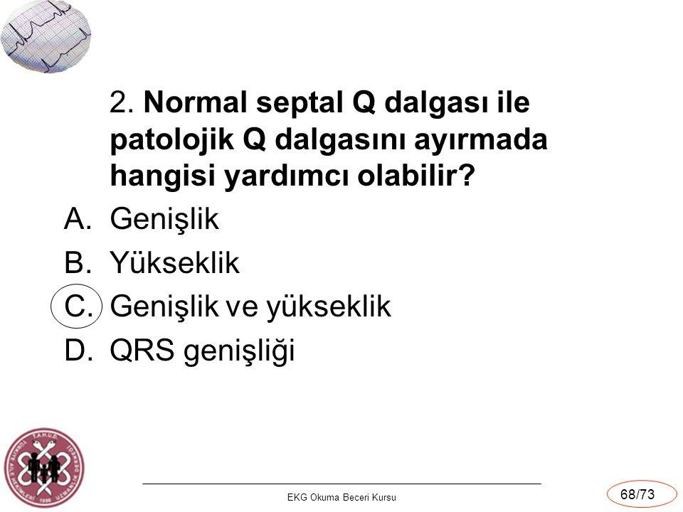 2. Normal septal Q dalgası ile patolojik Q dalgasını ayırmada hangisi yardımcı olabilir