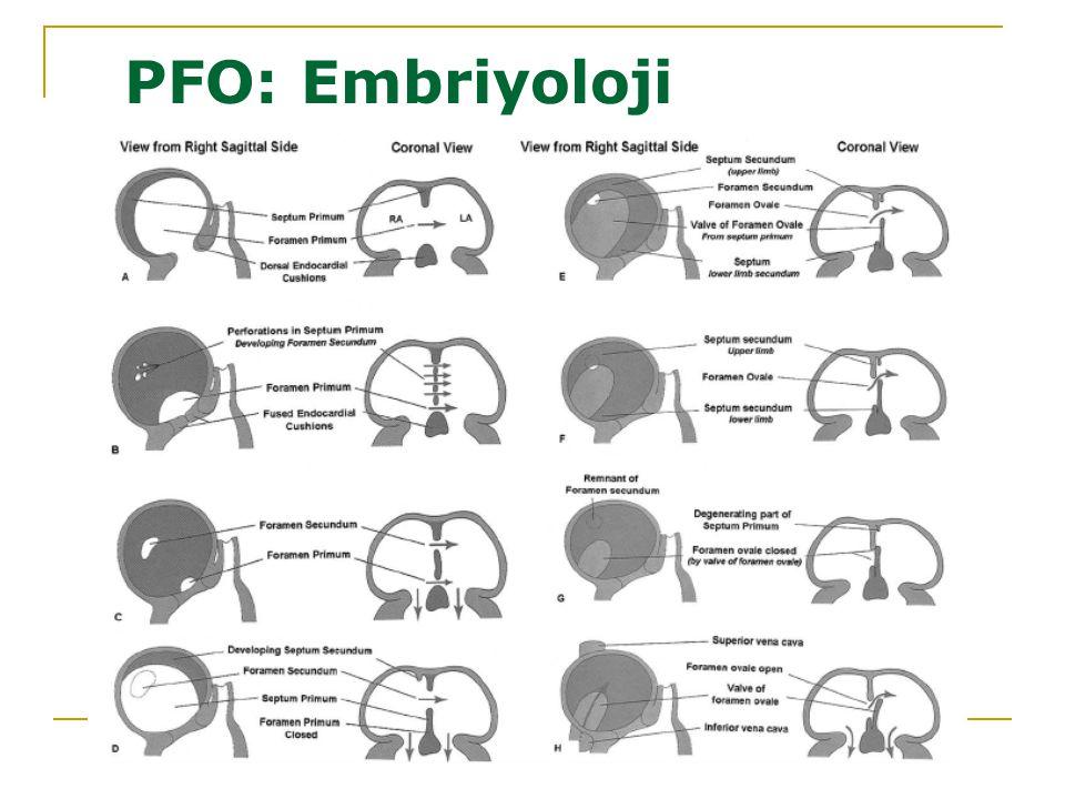 PFO: Embriyoloji